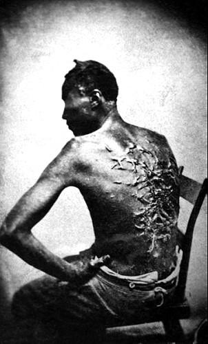 Whipped slave, Baton Rouge, La., April 2, 1863
